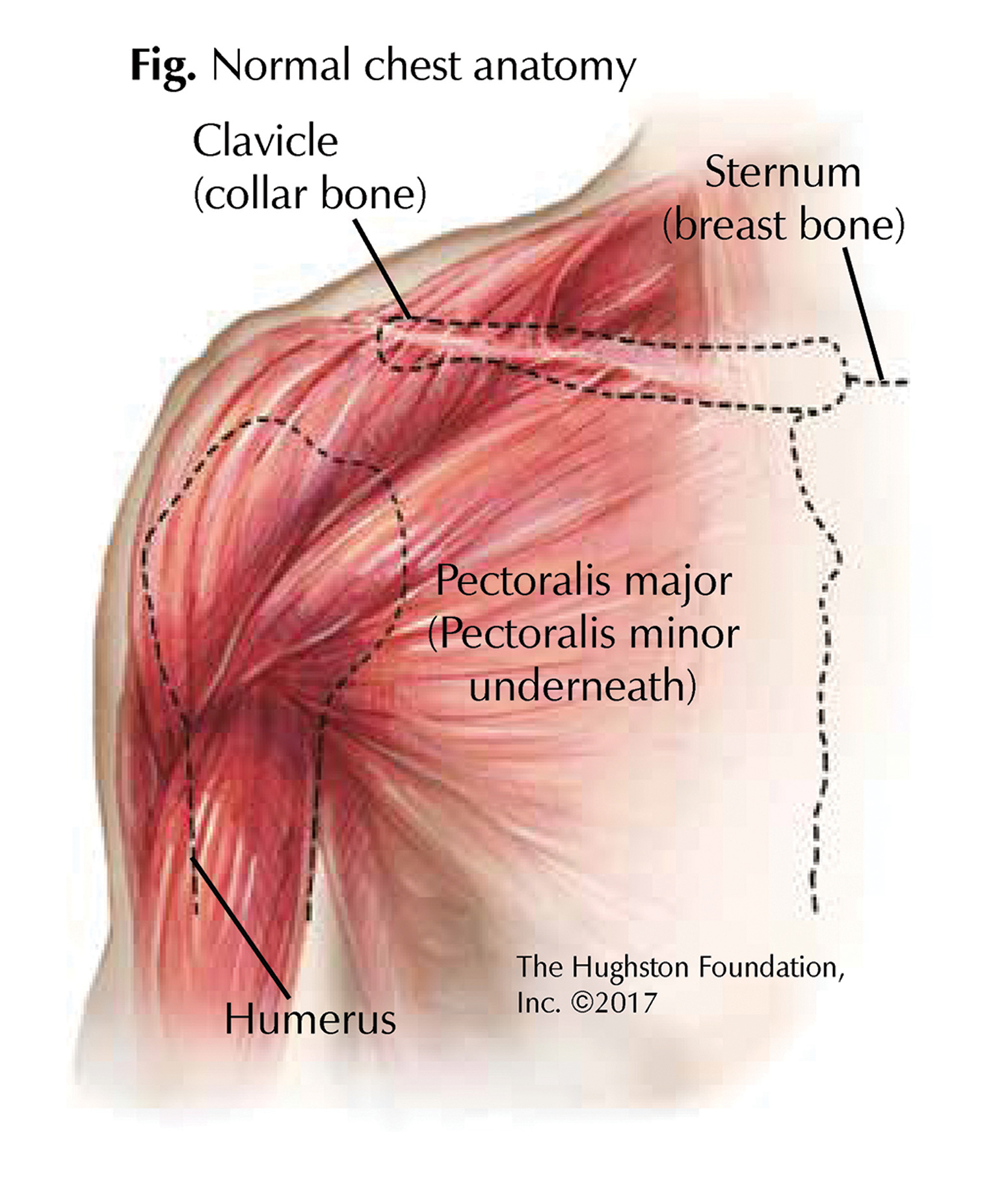 Chest Muscle Injuries Strains And Tears Of The Pectoralis Major Hughston Clinic