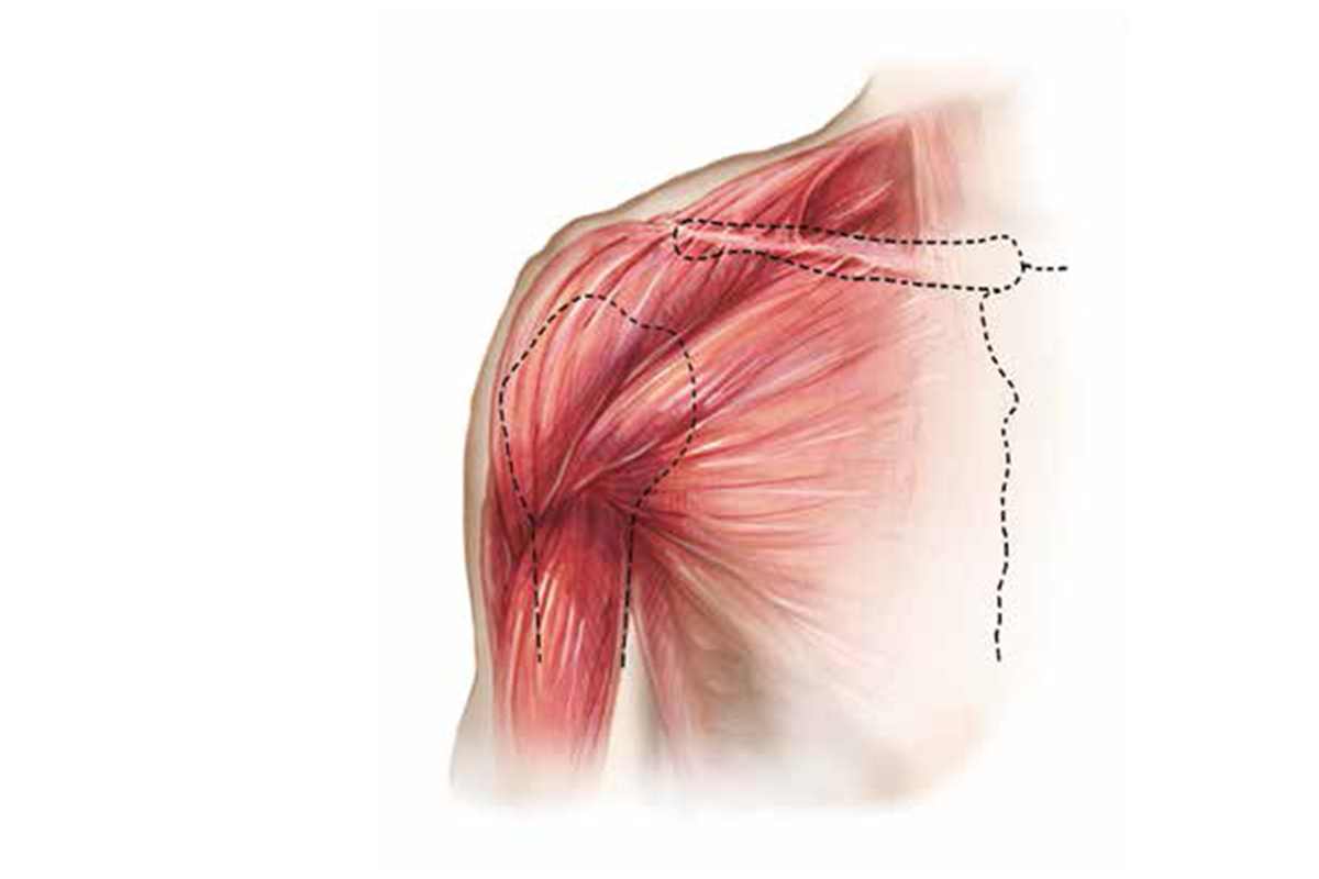 Chest Muscle Injuries: Strains and Tears of the Pectoralis Major