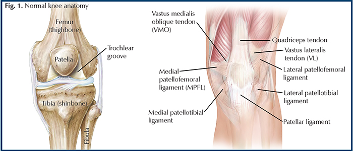 knee femur diagram traumatic patellar dislocation hughston clinic  traumatic patellar dislocation