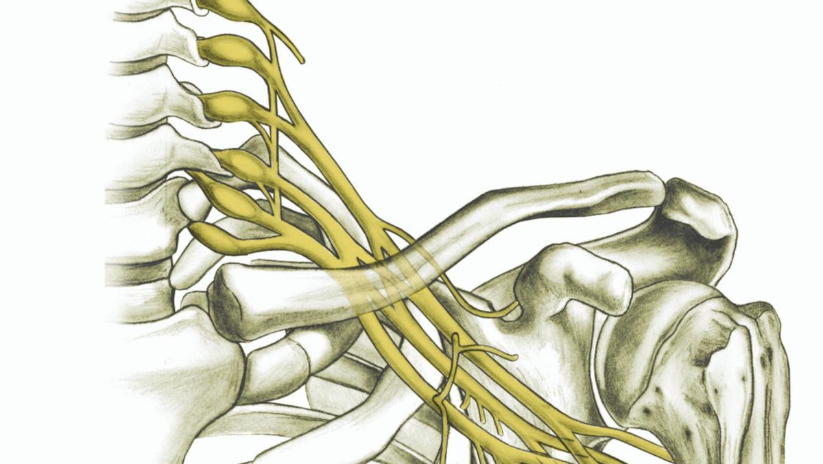 Brachial Plexus: Traumatic Nerve Injuries