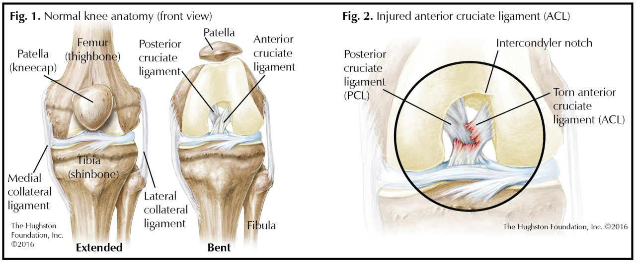 ACL Tears in Teens