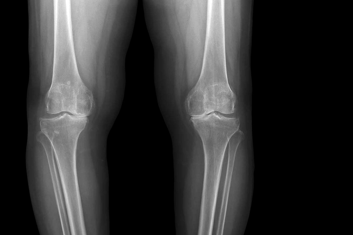 Orthopedic Imaging