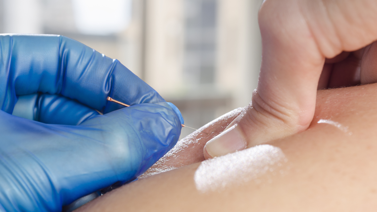 Dry Needling: What You Should Know
