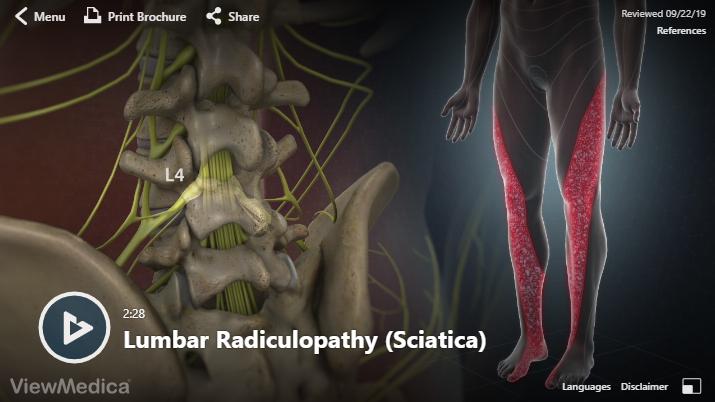 Video: Lumbar Radiculopathy (Sciatica)