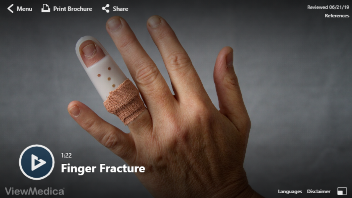 Video: Finger Fractures