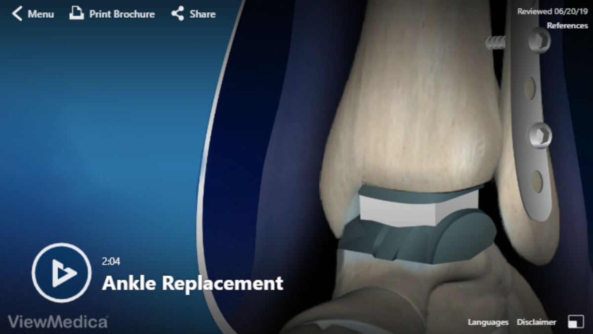 Video: Ankle Replacement