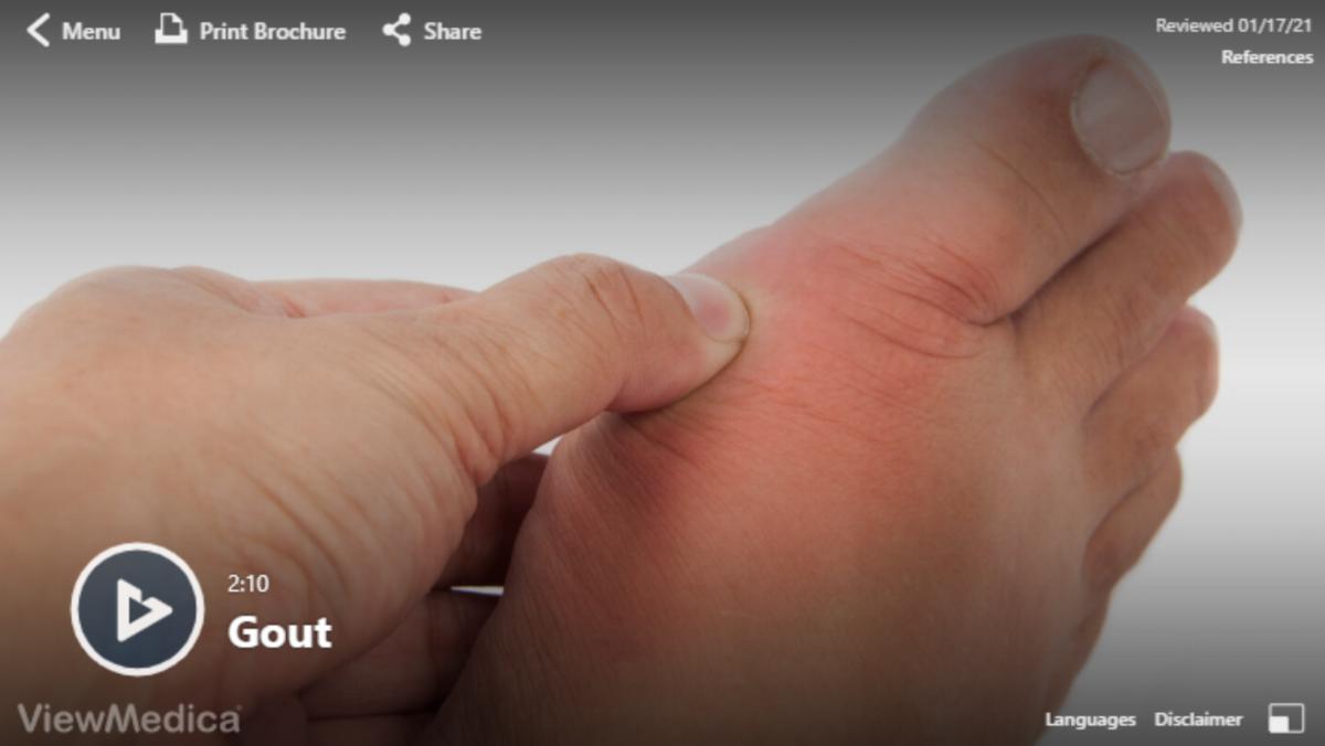 Video: Gout