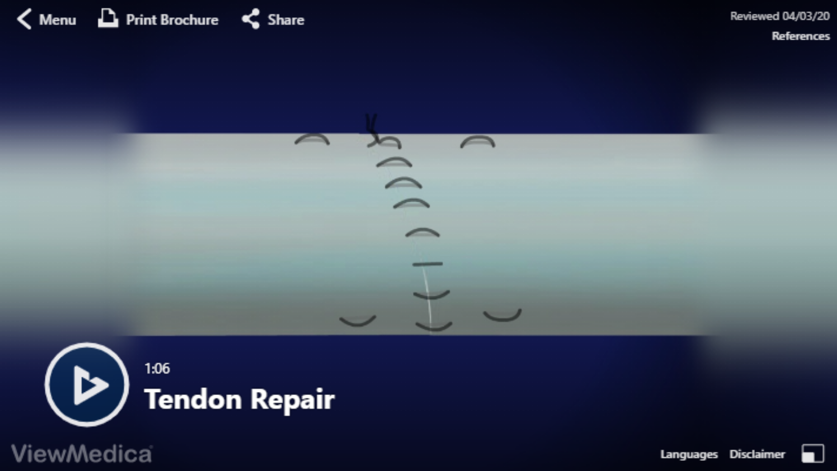 Video: Tendon Repair