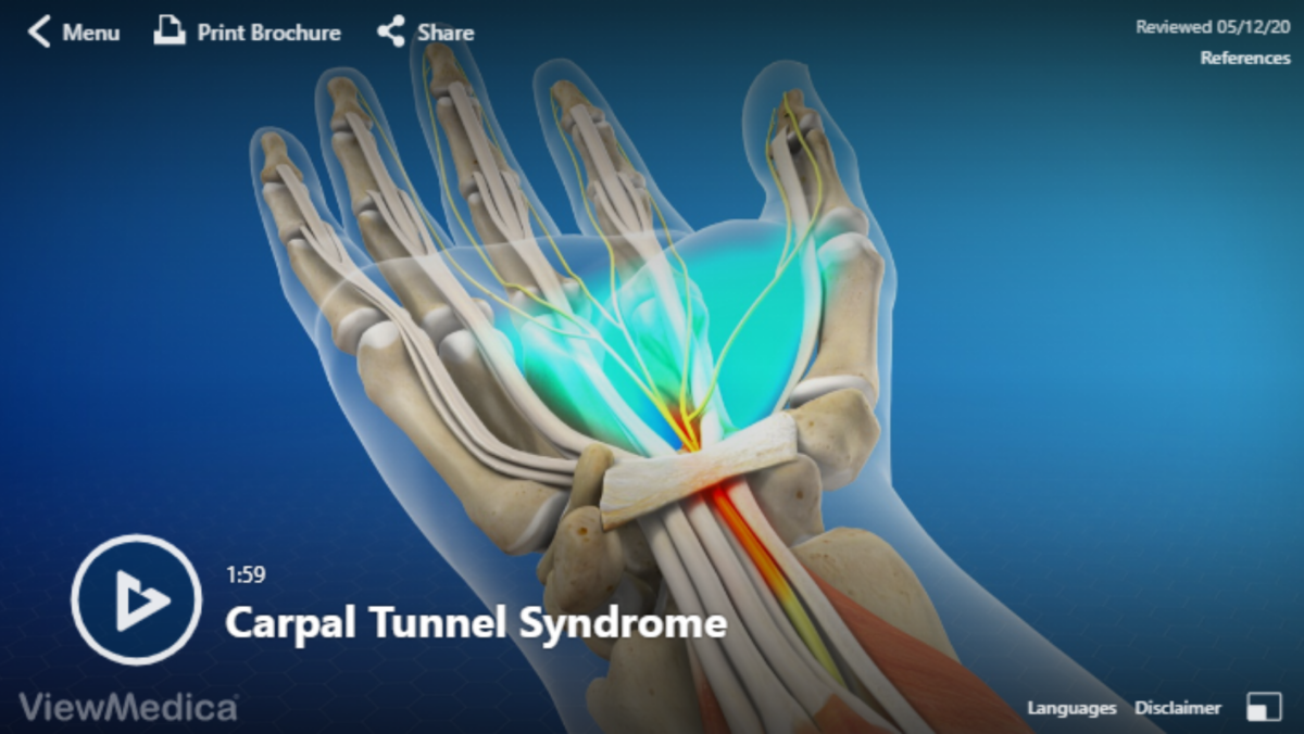 Video: Carpal Tunnel Syndrome